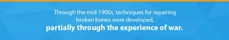 Fact: mid-1900s techniques for repairing broken bones developed from the war