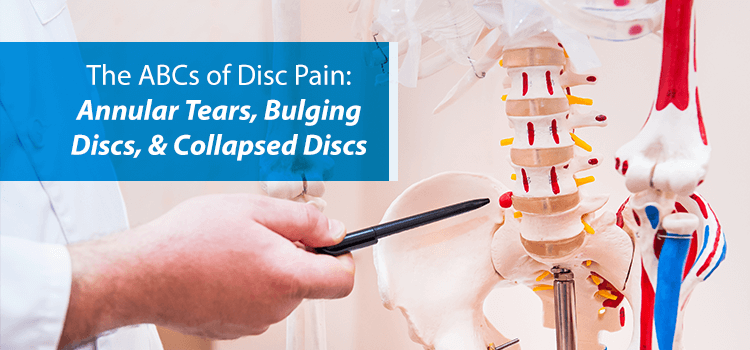 doctor pointing to bulging disc
